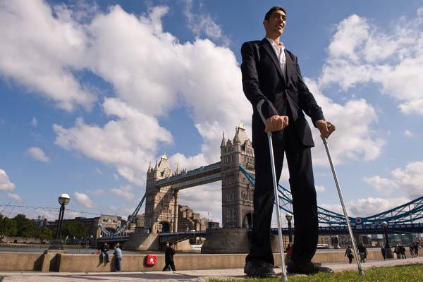 Мед. работники узнали, почему высокие люди неживут долго— Особый ген