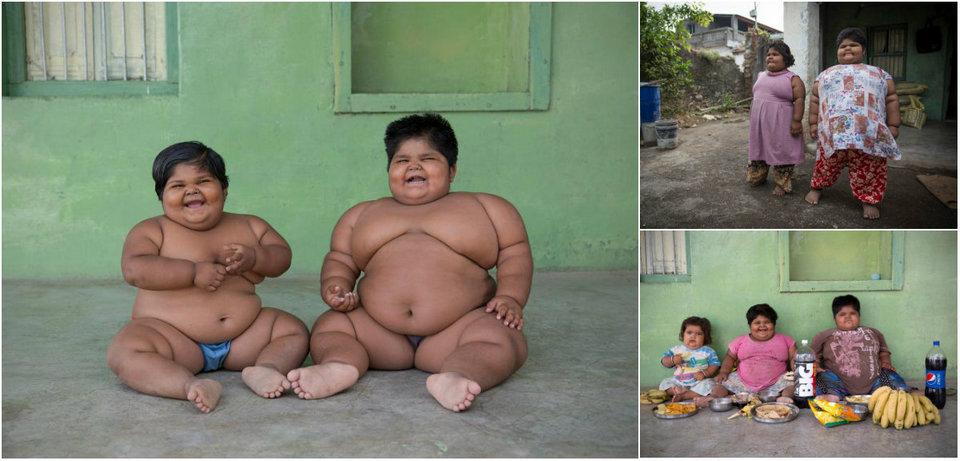 Самым толстым сестрам из Индии уменьшили желудки и они начали худеть